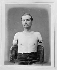 One of the wounded, double amputee Sergeant Warden, as photographed by the Surgeon General's Office.