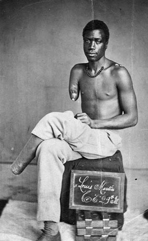 Private Louis Martin of Company E, 29th USCT, lost his right arm and left foot during the Battle of the Crater.